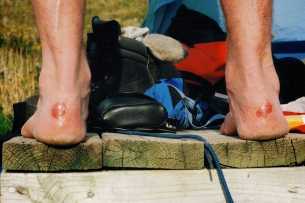 blisters make your trip home very difficult - prevention is key